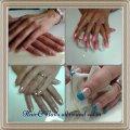 verschillende nagel behandelingen